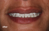 Cosmetic Dentures Before After pictures